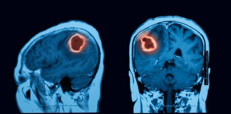 Profilaktyka nowotworów – rak głowy