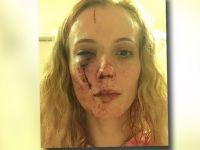 Rasistowski atak na kobietę. Sprawcy myśleli, że jest Polką