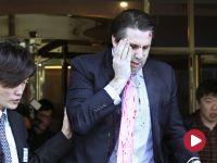Amerykański dyplomata ranny w głowę po ataku w Seulu. Napastnik domagał się zjednoczenia Korei