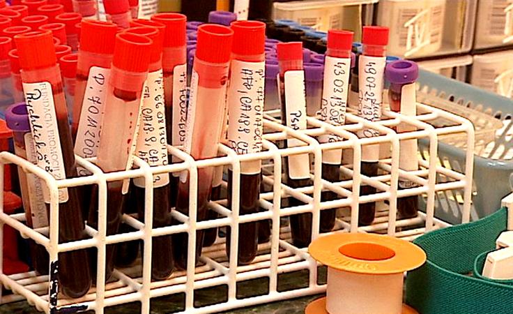Ponad 4,5 mln Polaków ma chore nerki