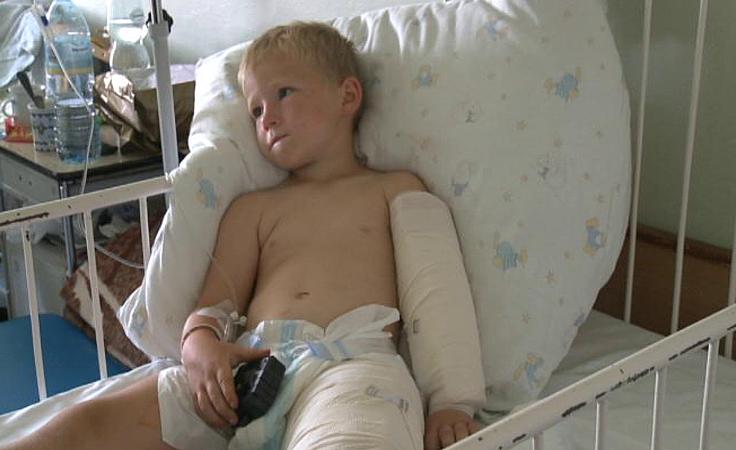 5-latek i 9-latek w szpitalu po ataku dzika