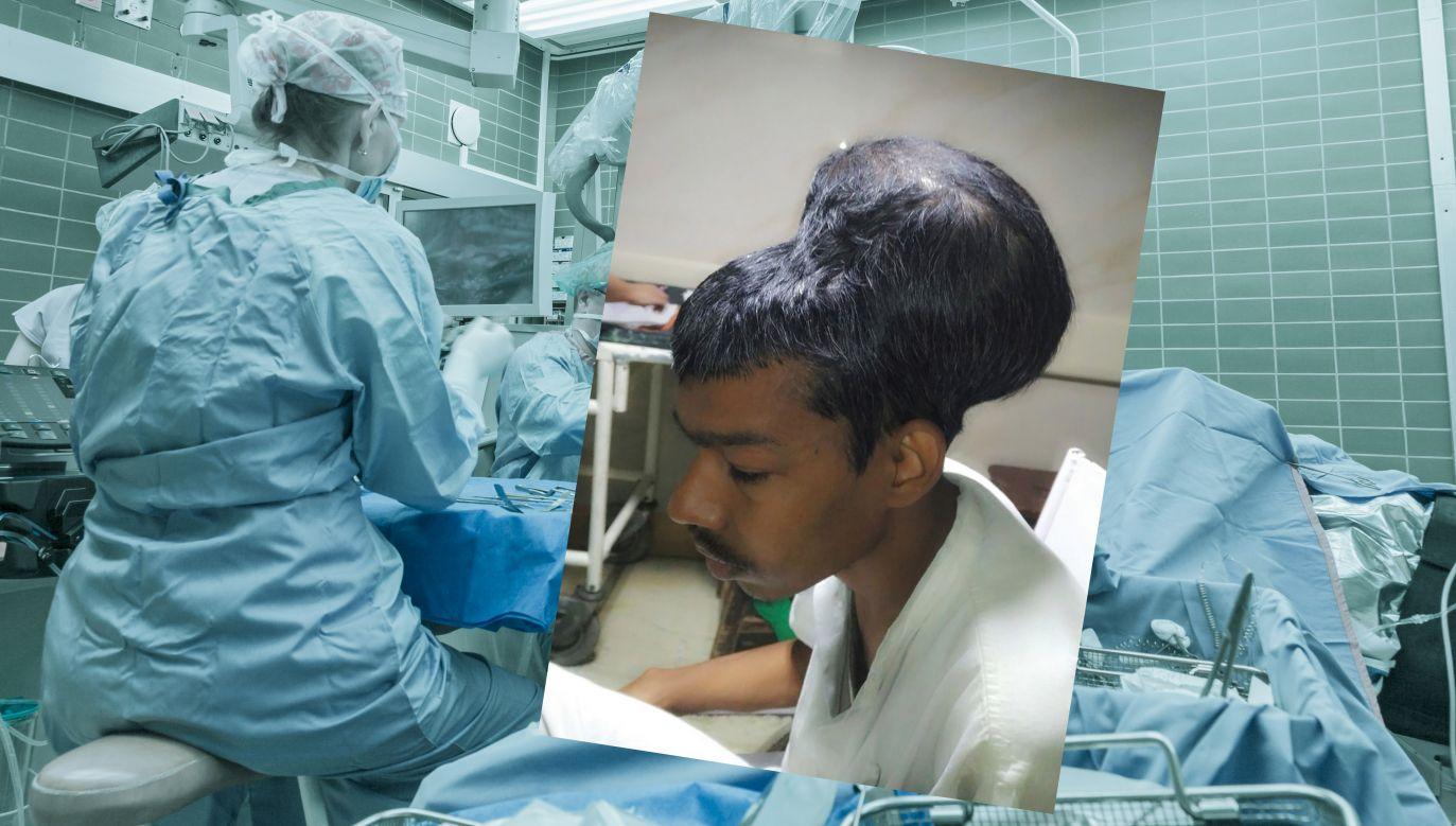 O przeprowadzeniu udanej operacji usunięcia guza mózgu poinformowali  chirurdzy z Indii  (fot. Shutterstock/Department of Neurosurgery Topiwala National Medical College)