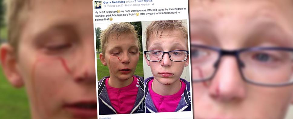 Atak na tle rasowym w irlandii – 11-letni Igor został pobiły, bo jest polakiem (fot. Facebook.com)