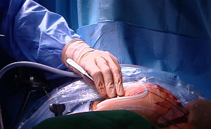 Rzeszowscy kardiochirurdzy wyznaczają standardy i szkolą innych
