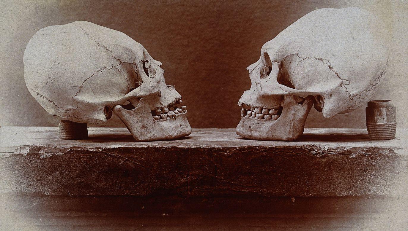 Odkształcone czaszki Indian znad rzeki Kolorado. W kolekcji dr A.L. Fisher, Elkhart, Indiana. For. Wikimedia/Wellcome