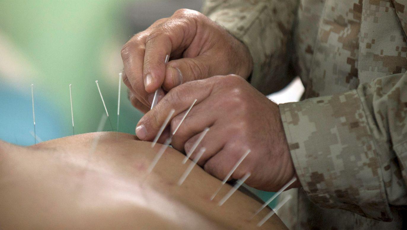 Akupunktura jest powszechnie stosowana w Hiszpanii (fot. US Navy)