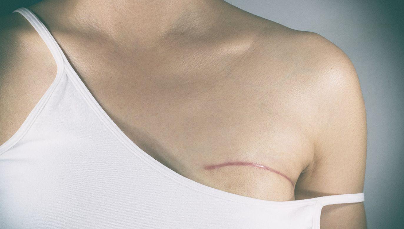 Pod względem zachorowalności pierwszą trójkę stanowią nowotwory piersi (u kobiet), jelita grubego i płuc (fot. Shutterstock/Pradit.Ph)