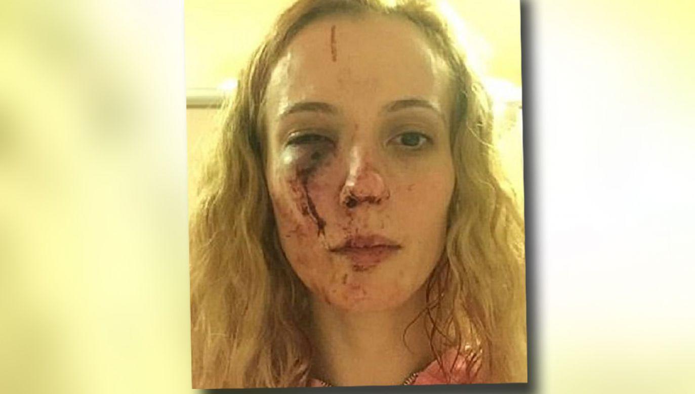 Anca Vacariu była kopana i bita m.in. po twarzy (fot. FB/Anca Vacariu)