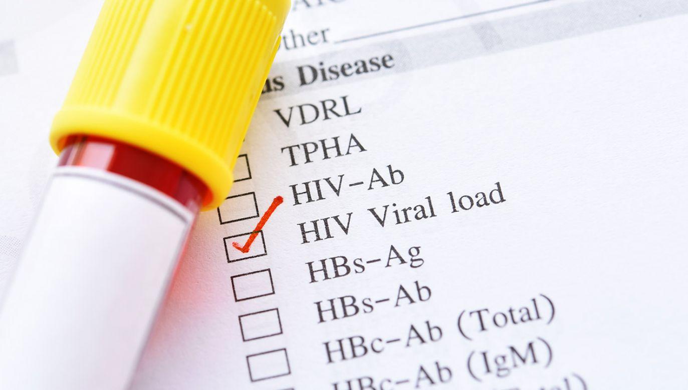Nowa terapia daje nadzieję na przełom w leczeniu prawie 40 mln nosicieli wirusa HIV na świecie (fot. Shutterstock/Jarun Ontakrai)