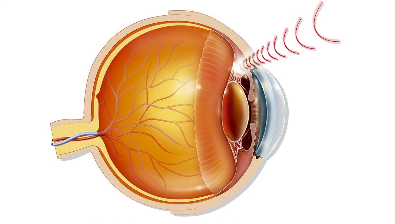 Niszcząca siatkówkę i nerw wzrokowy jaskra na całym świecie dotyka ok. 70 mln ludzi (fot. BSIP/UIG via Getty Images)
