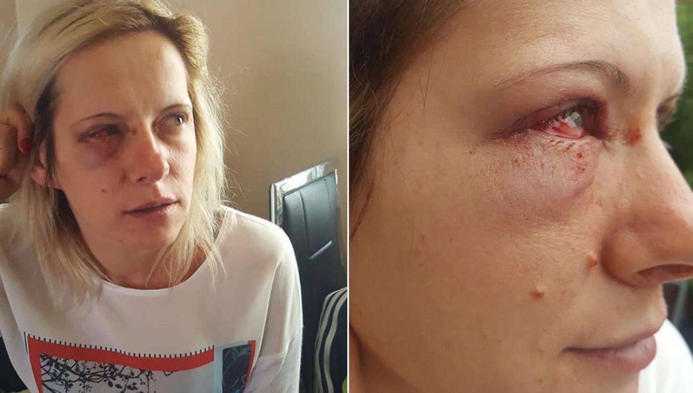 Pani Anna pisze, że napadła ją grupa kobiet (fot. tt/Ania Maria Serafin Podolska)