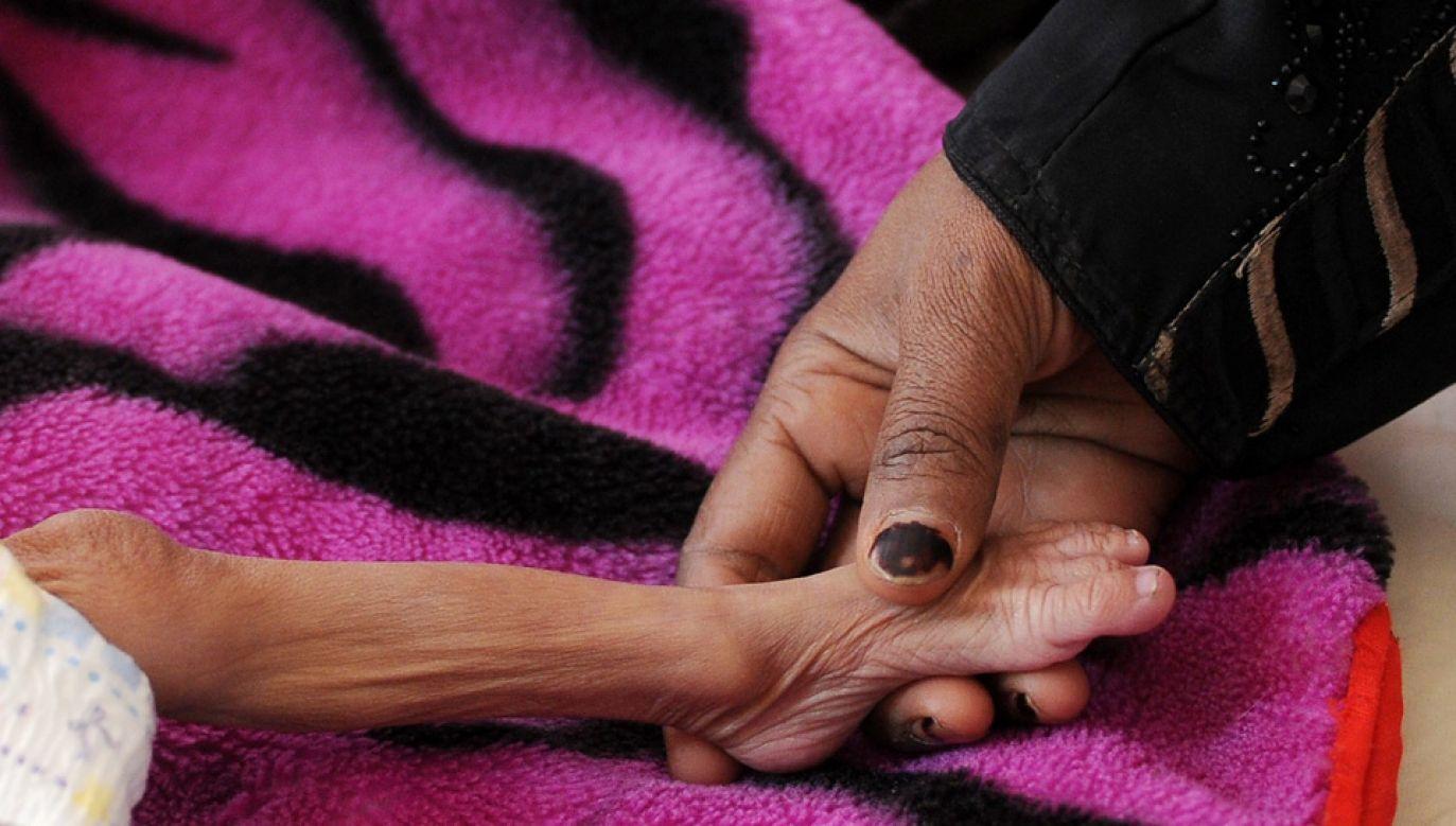 Zjawisko głodu występuje w wielu krajach Afryki oraz m.in. w Jemenie (fot. Mohammed Hamoud/Anadolu Agency/Getty Images)