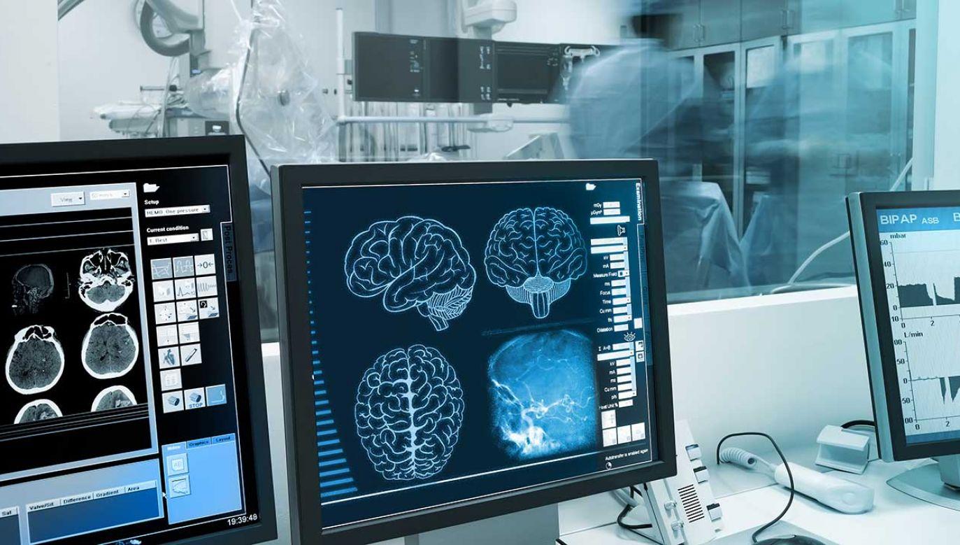 Kobieta uległa poważnemu wypadkowi, w wyniku którego doznała urazu mózgu (fot. Shutterstock/sfam_photo)
