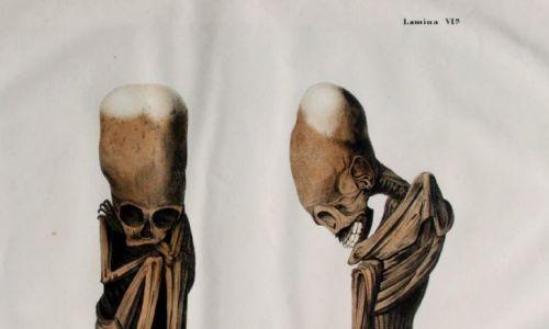 Dr Leopold Müller: Litografia płodu, w pozycji wewnątrzmacicznej, z typowym kształtem czaszki Huanca, hiszpańskiej wersji