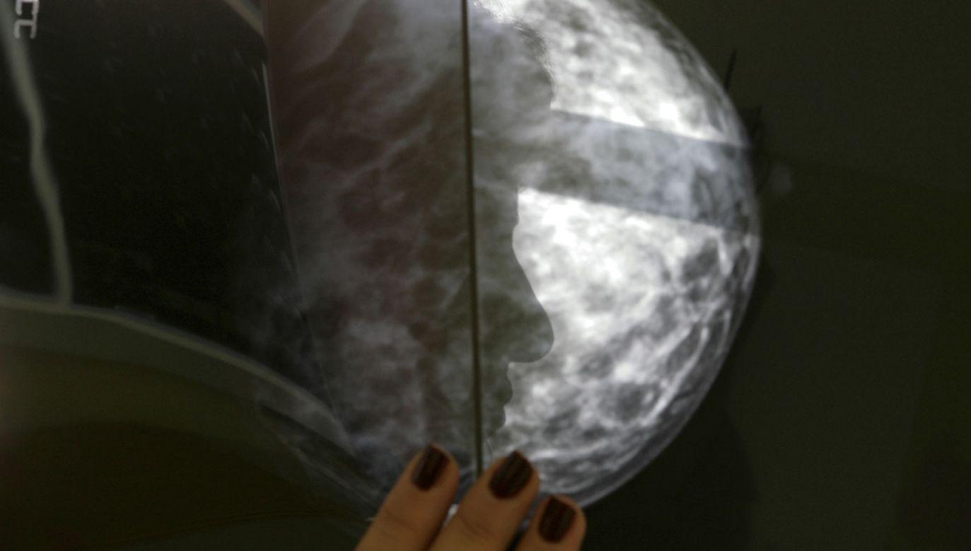 Badacze przypuszczają, że u chorych na raka piersi migotanie przedsionków rozwija się łatwiej, ponieważ rak wywołuje proces zapalny (fot. REUTERS/Yannis Behrakis)
