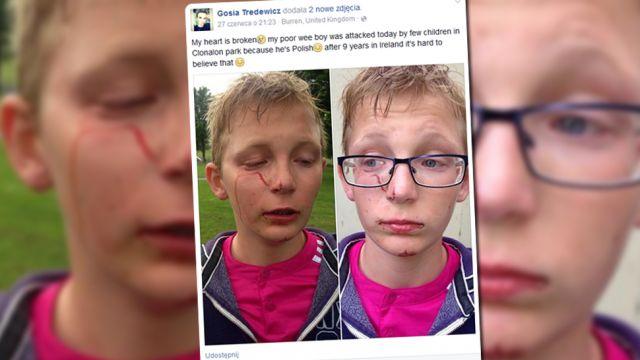 """""""Jesteś gnojkiem, bękartem! Wracaj do Polski!"""". Atak na 11-latka w Irlandii Północnej"""